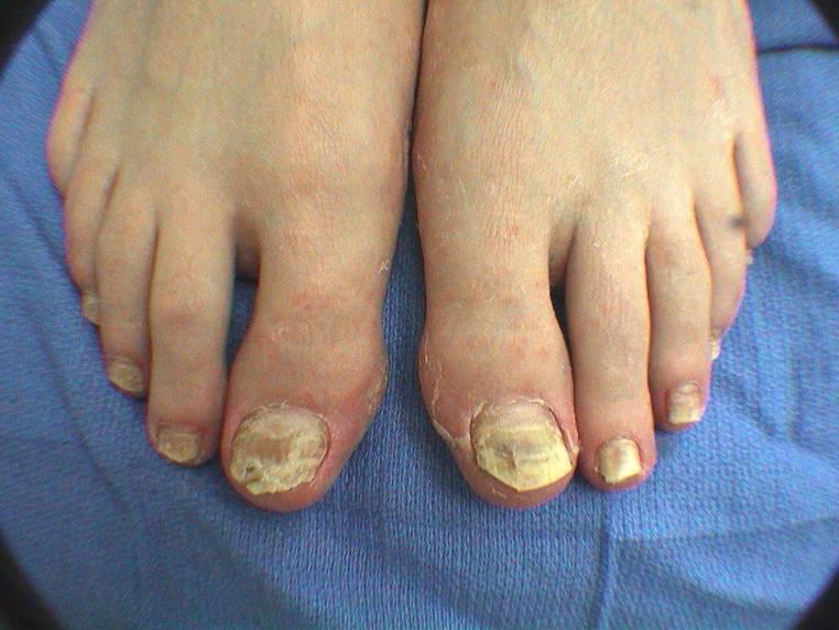 Как проявляется грибок на ногах у ребенка